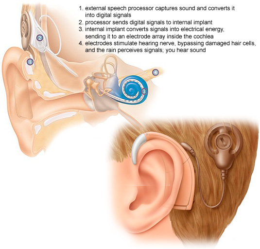 Cochlear-implant1.jpg