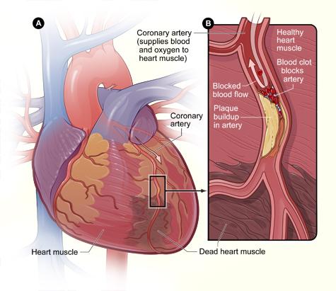 Coronary artery disease.jpg