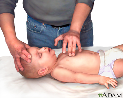 Infant-chest compressions.jpg