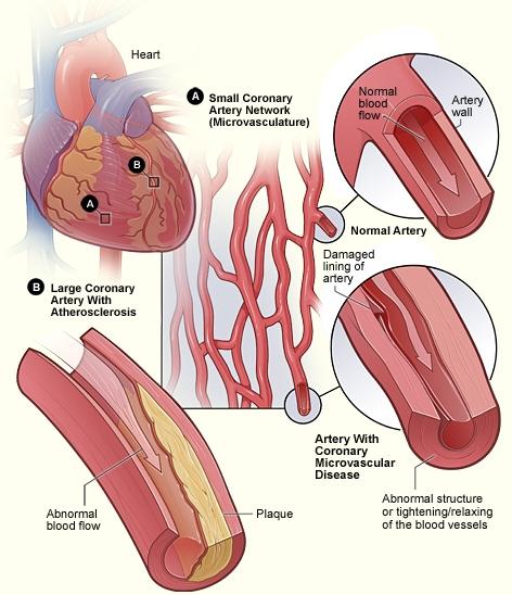 Microvascular disease.jpg