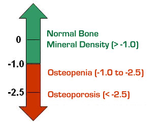 Osteoporosis-Graph.jpg