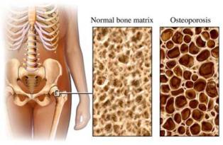 porous bones in osteoporosis.jpg