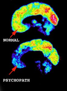 normal-brain-vs-psychopathtic-221x300.jpg